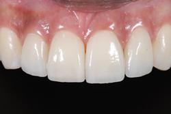 歯の隙間(歯の大きさ)の改善14