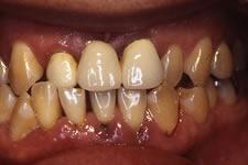 4. 中等度歯周炎(治療前)