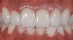 歯の色と形が気になって・・・4