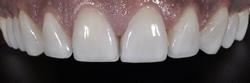 歯の隙間(歯の大きさ)の改善10