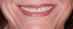 歯の隙間(歯の大きさ)の改善5