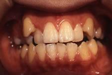叢生(八重歯)2 (治療前)