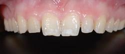歯の隙間(歯の大きさ)の改善17