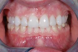 歯の隙間(歯の大きさ)の改善16