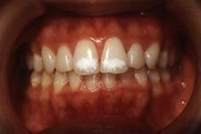 叢生(八重歯)(治療後)