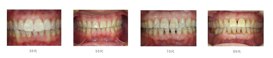 1. 健康な歯ぐき
