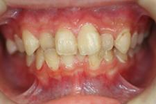 3. 軽度歯周炎(治療後1)