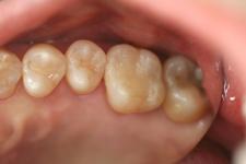 浅い虫歯治療後
