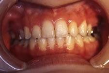 上顎前突(出っ歯)2(治療後)
