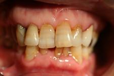 重度歯周炎により下顎前歯が動揺して来院(治療前)