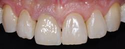 破折した前歯をオールセラミックスクラウンに2