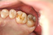浅い虫歯治療前