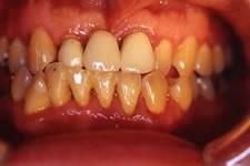 4. 中等度歯周炎(治療後)