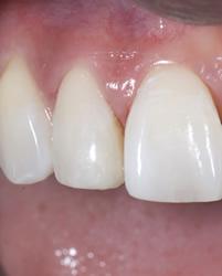 歯の隙間(歯の大きさ)の改善2