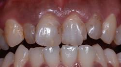 歯の色と形が気になって・・・3