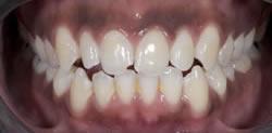 歯の隙間(歯の大きさ)の改善7