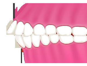 出っ歯(上顎前出)