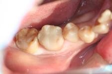 深い虫歯(治療後)