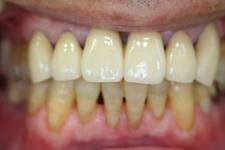 歯の動揺と隙間が広くなってきた事を気にされて来院(治療後)