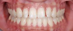 歯の隙間(歯の大きさ)の改善11
