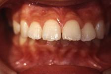 上顎前突(出っ歯)(治療前)