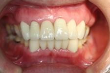 重度歯周炎により下顎前歯が動揺して来院(治療後)