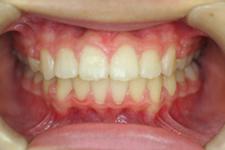 上顎前突(出っ歯)(治療後)