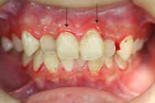 3. 軽度歯周炎(治療前1)