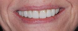 歯の隙間(歯の大きさ)の改善6