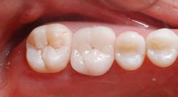 奥歯をオールセラミックスクラウンに付け替え2