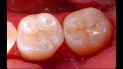 むし歯をセラミックインレーで修復2