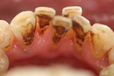 3. 軽度歯周炎(治療前2)
