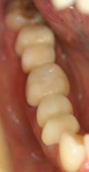 銀歯が気になる方向けの審美治療2
