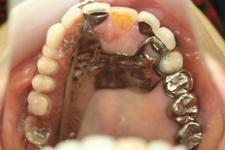 金属床の部分義歯(治療後)