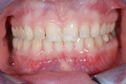 歯の隙間(歯の大きさ)の改善15