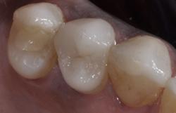 むし歯をセラミックインレーで修復4