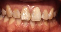 歯の色と形が気になって・・・1