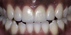 歯の隙間(歯の大きさ)の改善8