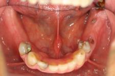 インプラントの治療例3-1