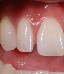 歯の隙間(歯の大きさ)の改善1