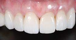 歯の隙間(歯の大きさ)の改善4