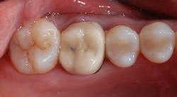 奥歯をオールセラミックスクラウンに付け替え1