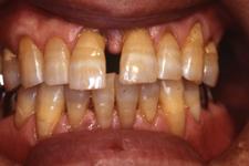 歯の動揺と隙間が広くなってきた事を気にされて来院(治療前)