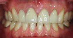 歯の色と形が気になって・・・2
