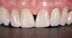 歯の隙間(歯の大きさ)の改善3