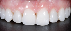 歯の隙間(歯の大きさ)の改善18