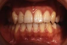 叢生(八重歯)2 (治療後)