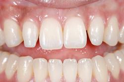 歯の隙間(歯の大きさ)の改善13