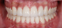 歯の隙間(歯の大きさ)の改善12