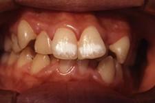 叢生(八重歯)(治療前)